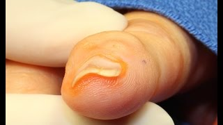 Live Surgery: Ganglion Cyst: Distal Interphalangeal Joint (Finger)