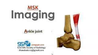 Imaging Of Ankle Joint And Foot (I) - DRE - Prof. Dr. Mamdouh Mahfouz