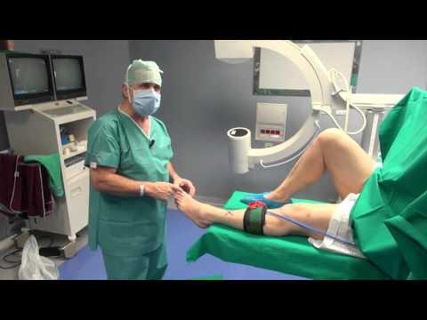 Artrosi deformante del trattamento livello della caviglia 1