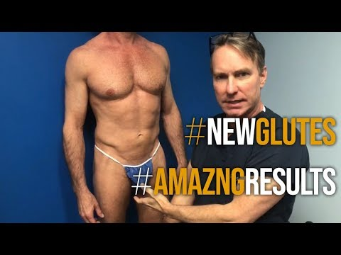 Male Gluteal Implant by Douglas S. Steinbrech, Male Plastic Surgery