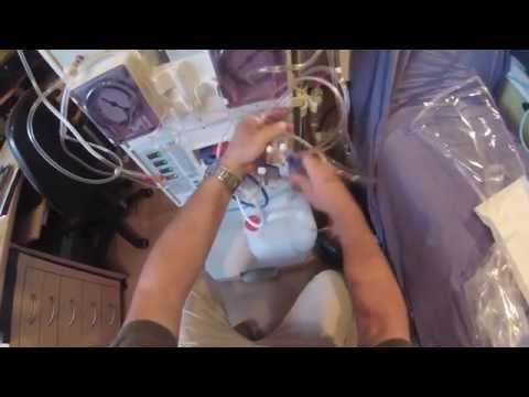 Impfung gegen Poliomyelitis in diabetes