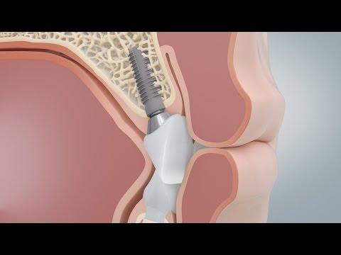 Comparison of dental implants and bridges (CAMLOG) - Animation Medizin