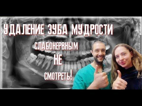 Удаление зуба мудрости в Европе + цены и лекарства! Реальная съёмка /Tooth extraction in Europe