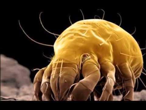 Bacterial linta ay