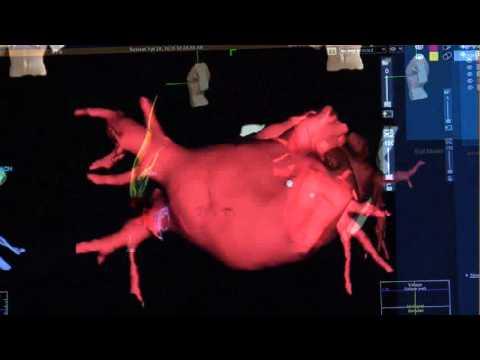 Als Prostata assoziiert mit Bauchspeicheldrüsen