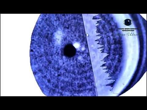Лазерная коррекция зрения степень сложности