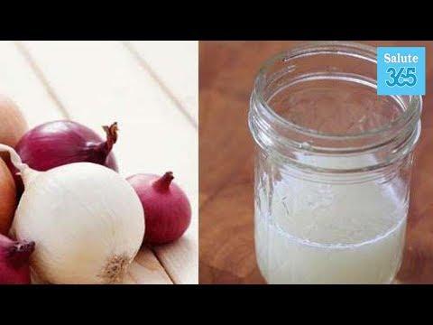 È possibile perdere il peso su latticini