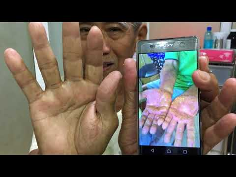 Palmoplantar โซดารักษาโรคสะเก็ดเงิน