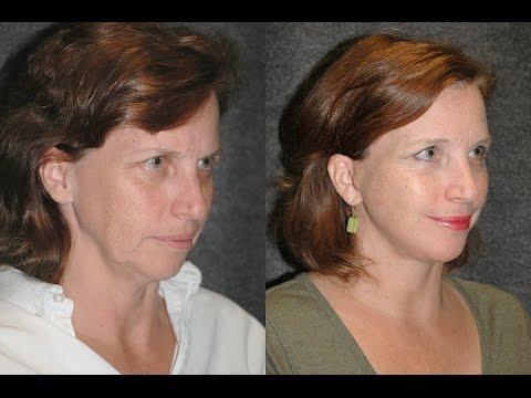 Thread angat facial contours