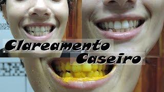 Tag Como Clarear Os Dentes Com Acafrao