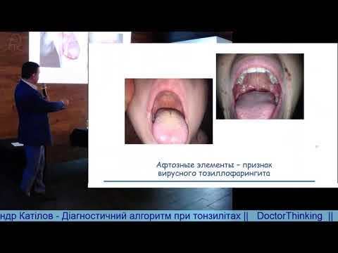 Діагностичний алгоритм при тонзилітах - Олександр Катілов