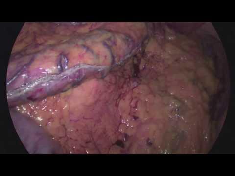 Do que para tratar a hipertensão renal
