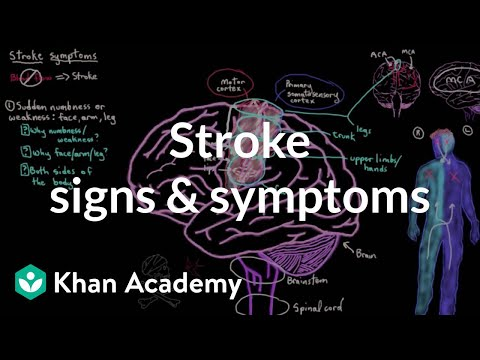 Video Common stroke signs and symptoms | Circulatory System and Disease | NCLEX-RN | Khan Academy