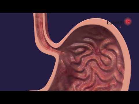 Die Thrombophlebitis tiefer Venen die Schwangerschaft