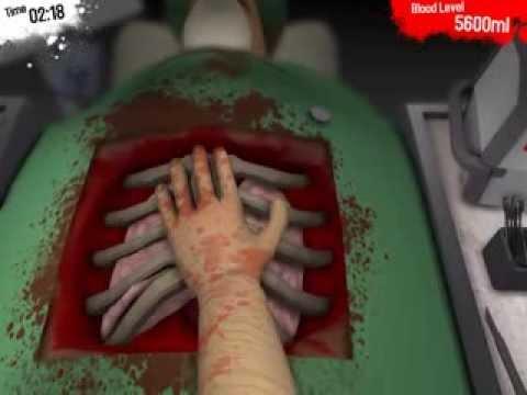 การเตรียมการสำหรับ sclerotherapy ของหลอดเลือดดำที่ขา