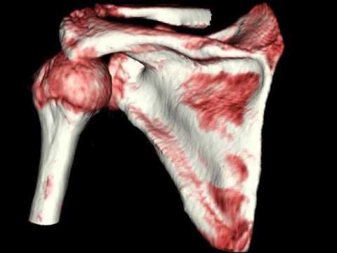 Вывих в плечевом суставе, 3D-реконструкция