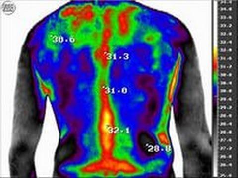 Постизометрическая релаксация шейно грудного отдела