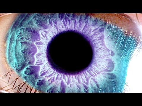 При глазном давлении красный глаз
