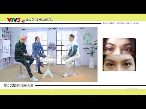 VTV3 | Sửa mí mắt lỗi hỏng