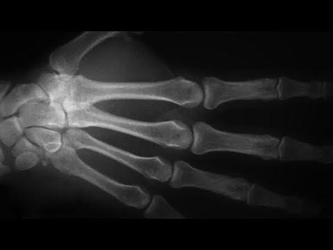 Что происходит с нашими сухожилиями и костями  когда мы их ломаем