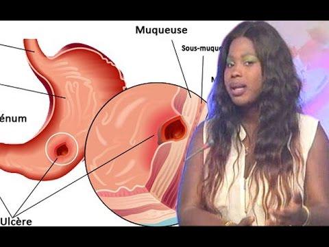 Le moyen se délivrera de la varicosité