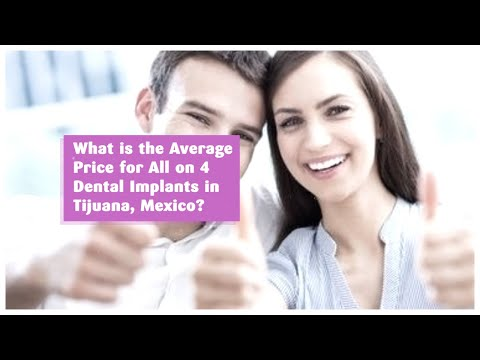 What is the Average Price for All on 4 Dental Implants in Tijuana, Mexico?