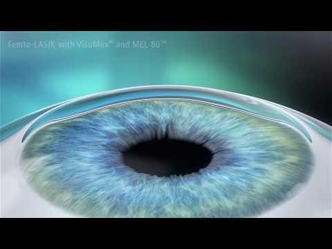 Varázslatok a látás javítására
