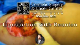Dr. Jabor - Liposuction Renuvion Arc