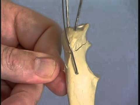 Перелом локтевого бугра