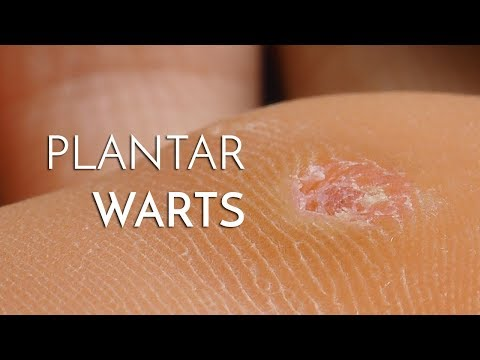 Difference between vestibular papillomatosis and warts