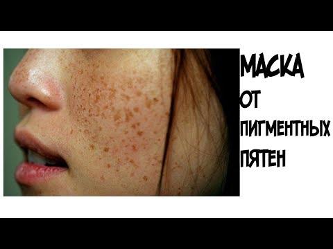 Как закончить пигментные пятна на лице
