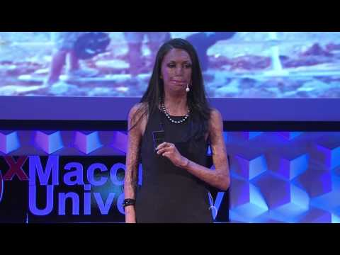 Turia Pitt - TEDxMacquarieUniversity