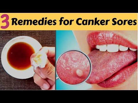Cancer genetic counselor job description