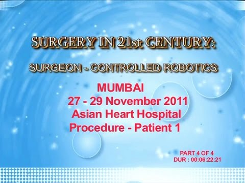 Nerve Sparing Robotic Prostatectomy part 4