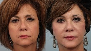 Female Weekend Lift/Neck Lift with Lipotransfers by Dr. Edwin Williams