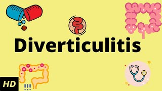 Diverticulitis, Causes, SIgns and Symptoms, Diagnosis and Treatment.