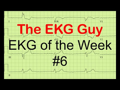 EKG of the Week #6