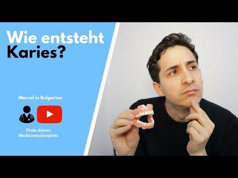 Wie entsteht Karies? Ist Karies eine Infektionskrankheit? Einblick in die Welt der Zahnmedizin