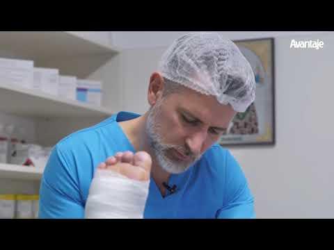 Tratamentul pielii între degetele de la picioare