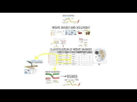 Przeniesienie (transfer) nerwu - wstęp i wskazania
