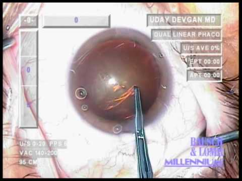 Cataract Surgery - No Cystotome Capsulorrhexis (Sharp-Tipped Forceps)