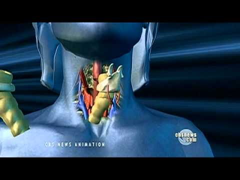 Tracheostomy cannulas and voice prosthesis