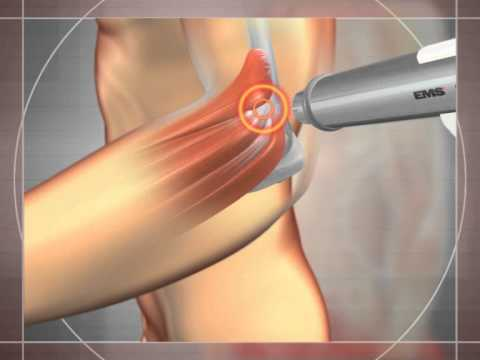 Alleviare la tensione dei muscoli aiuta con osteocondrosi