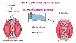 Orthostatic Hypotension (Described Concisely)