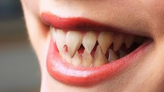 Белые зубы как у звезд