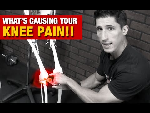 Video Knee Pain With Exercise (SURPRISING CAUSE and HOW TO FIX IT!)