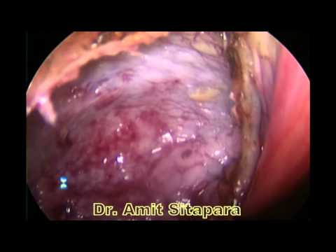 Laparoscopic Excision Of Liver Hydatid Cysts In 5 Years Old Child