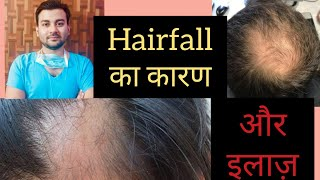 Hairfall - Causes & Treatment in Hindi by Dr Animesh MS ! बाल झड़ने की वजह और उपचार! #hairfalltips - Download this Video in MP3, M4A, WEBM, MP4, 3GP