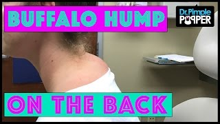 "Not a TRUE ""Buffalo Hump"" Lipoma with Dr Pimple Popper"