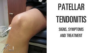 Patellar tendonitis: Signs, symptoms and remedies for this difficult knee problem